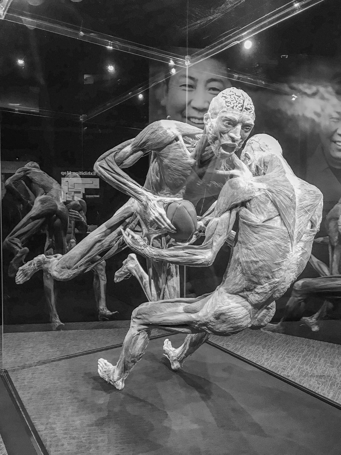 """A display at """"Body Worlds,"""" which is now open at the Museum of Science"""